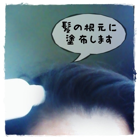 髪萌 薬用育毛エッセンス HATSUMOE プロアクティブ