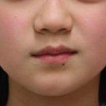 11歳 女子 チンキ…