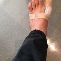 足の親指負傷…(涙)