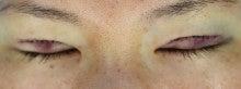 重瞼切開経過