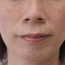 51歳 女性 上顎前…