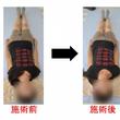 腰痛もきつい産後骨盤…