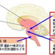 特発性脊柱側弯症・4…