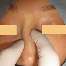 鼻修正術:10年前に…