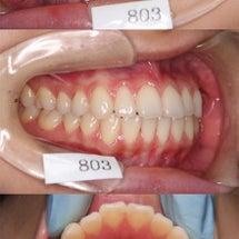 番外) 予防歯科に通…