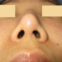 鼻プロテーゼ交換:9…