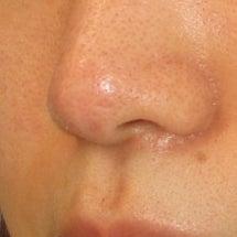 鼻尖修正術:鼻先の皮…