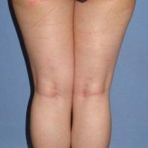 大腿、臀部、膝の脂肪…