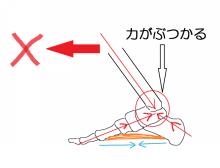 足の骨03_推進力阻害