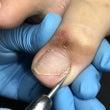 重度の巻爪