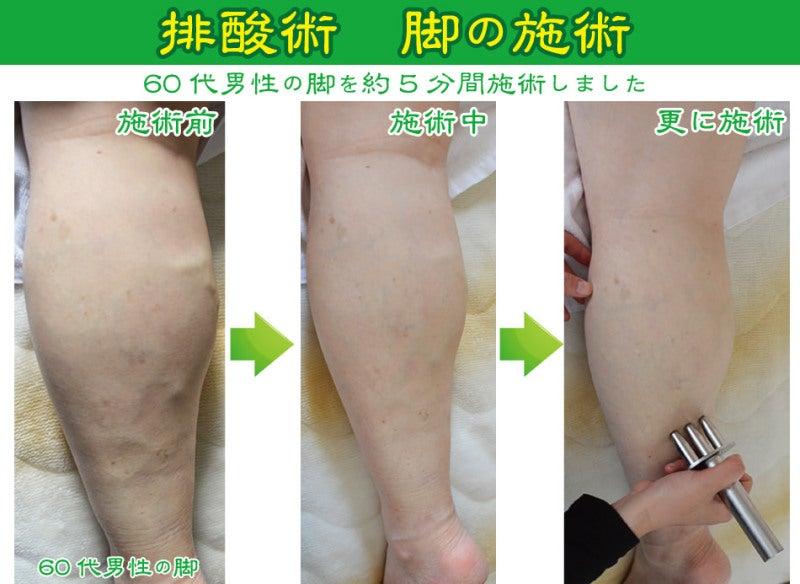 排酸術 脚の施術