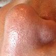 お鼻の毛穴は??