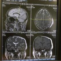 MRI 異常なし!