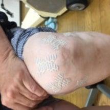 膝の痛みマックス!