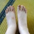 足が浮腫んだ