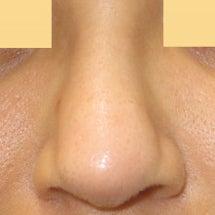 異種軟骨による鼻中隔…