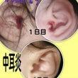中耳炎からの両耳切開