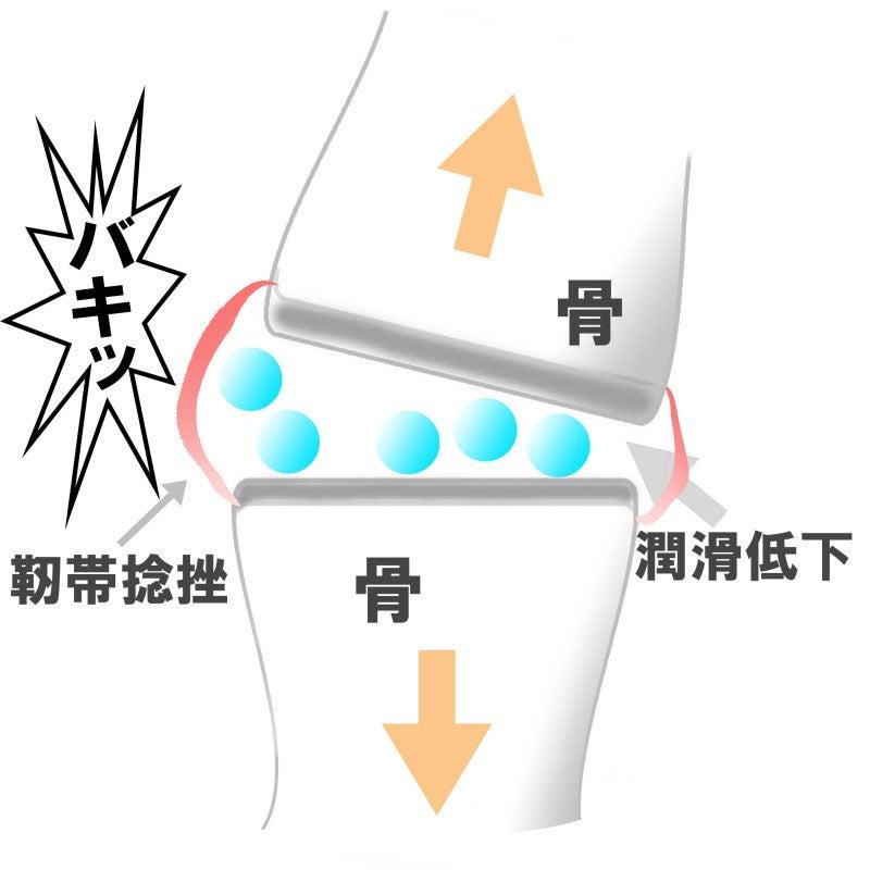靭帯ネンザ
