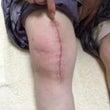 膝の手術後、腰が痛い…