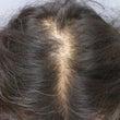 薄毛治療3ヶ月