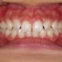 ☆歯並びの変化(比較…