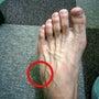 足の小指側が痛い ジ…