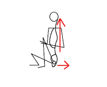 坐骨引き操作