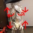アキレス腱炎の原因