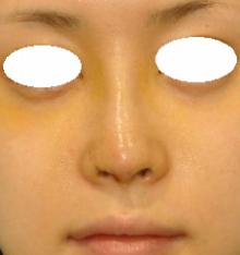 鼻尖 5D 正面