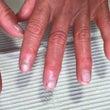 お客様の爪の変化