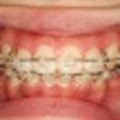 八重歯の歯列矯正 p…