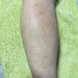 変形性膝関節症のアロ…
