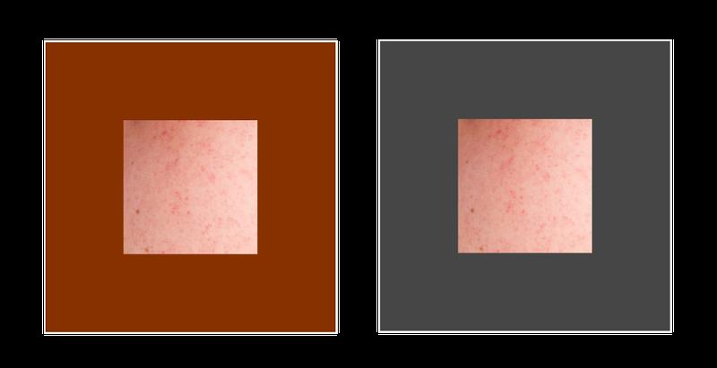 赤み肌と彩度対比