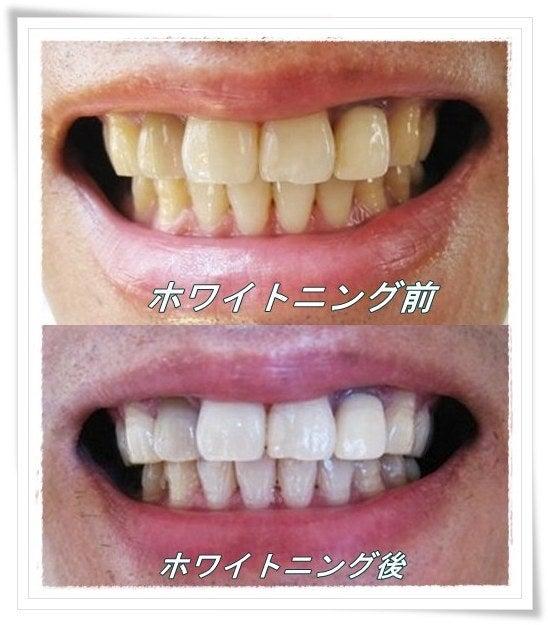 する 歯 白く