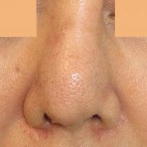 鼻部L型プロテーゼ:…