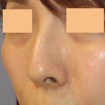 ハンプ 鼻骨部分切除…