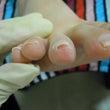 ネイル(足巻き爪も)