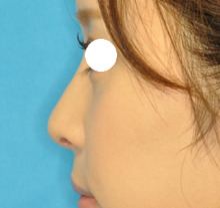 鼻尖+隆鼻 2W 左