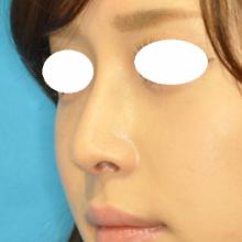 鼻尖+隆鼻 2W 左斜