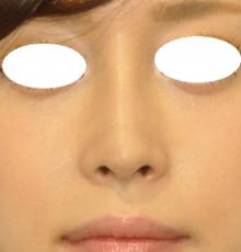 鼻尖+隆鼻 2W 正面