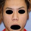 鼻中隔延長、鼻尖形成…