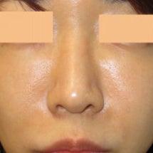 鼻尖形成術:鼻尖の向…