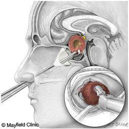 経鼻的経蝶形骨洞的下垂体腫瘍摘出術