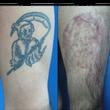 刺青を植皮で除去、手…