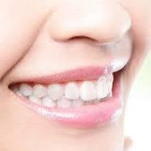 歯並び矯正治療、咬合…