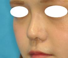 鼻尖+隆鼻 2M 左斜