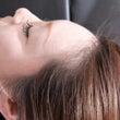 コリから起こる頭痛