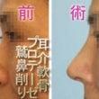 鼻は顔の中心です。ワ…