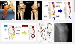 オスグッドとは 成長痛 膝の痛み