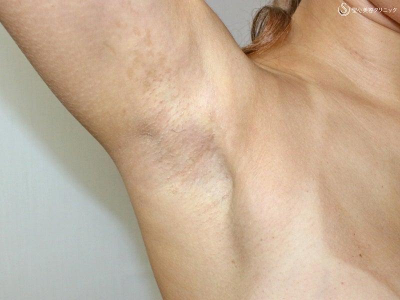 術後2Y傷痕